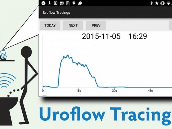 Screenshot of the Uroflow interface