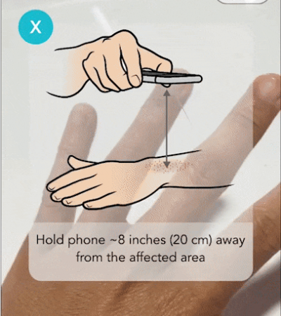 Screenshot of the Tele-dermatology app showing how to take a photo of the affected area