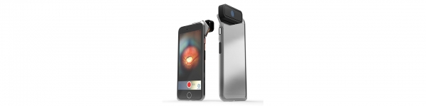 D-EYE Smartphone-Based Retinal Imaging System Mini Review