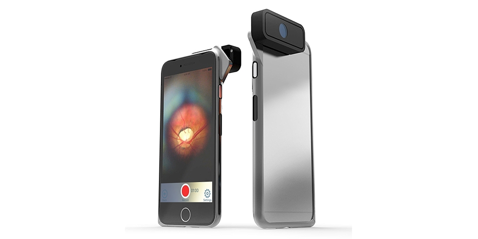 Black smartphone with the D-Eye retinal imaging device attached to the camera